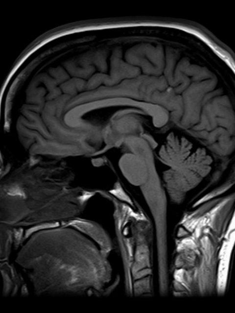 Koponya MRI.